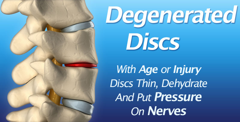 Degenerative Disc