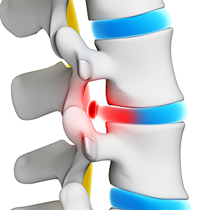 Herniated and Bulging Disc
